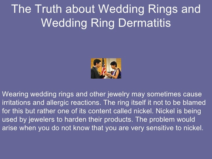 wedding nickel allergic ring alternatives allergies rings are free engagement you for your to