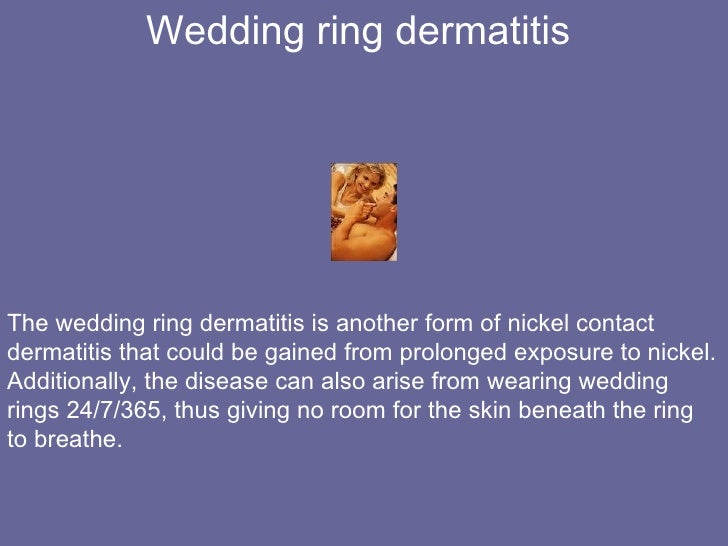 The Truth about Wedding Rings and Wedding Ring Dermatitis