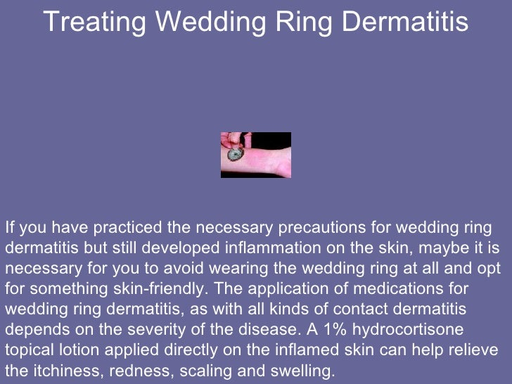 Truth about Wedding Rings and Wedding Ring Dermatitis