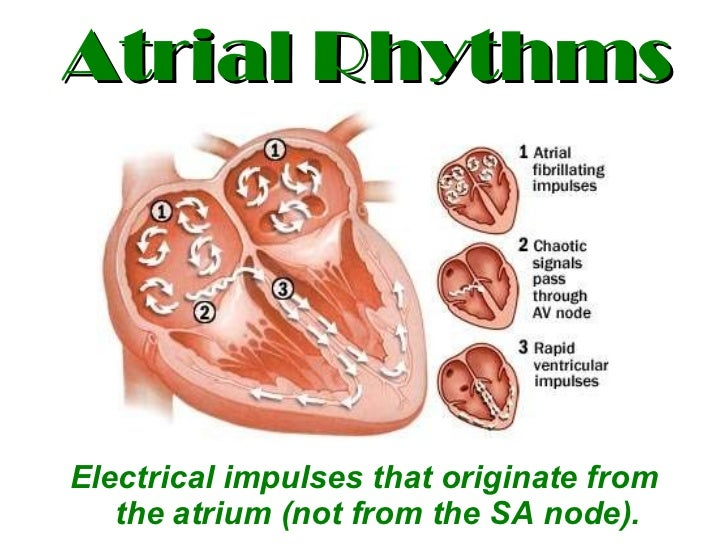 Atrial Rhythms <ul><li>Electrical impulses that originate from the atrium (not from the SA node). </li></ul>