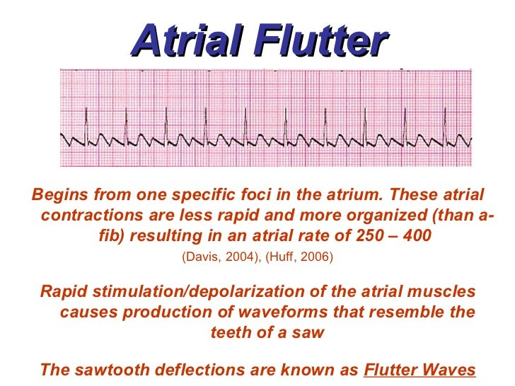 55270 furthermore Atrial Rhythms Bmhtele in addition Laplace Transform Of Floorx furthermore Ecg Arrhythmias also Setting The Output For L200c Am I Correct In How It Works. on sawtooth wave