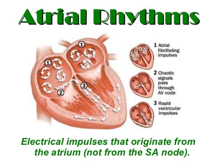 Atrial Rhythms <ul><li>Electrical impulses that originate from the atrium (not from the SA node). </li></ul>