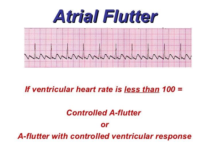 3a atrial rhythms