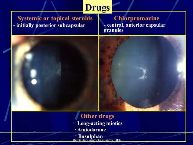 systemic steroid induced glaucoma