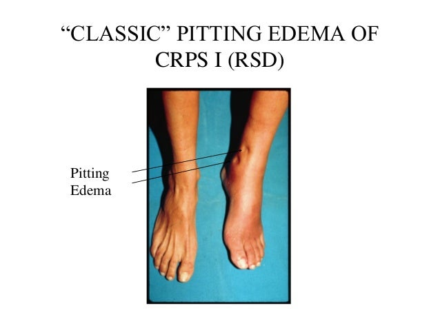 CRPS I (RSD) with pictures  Differential Diagnosis