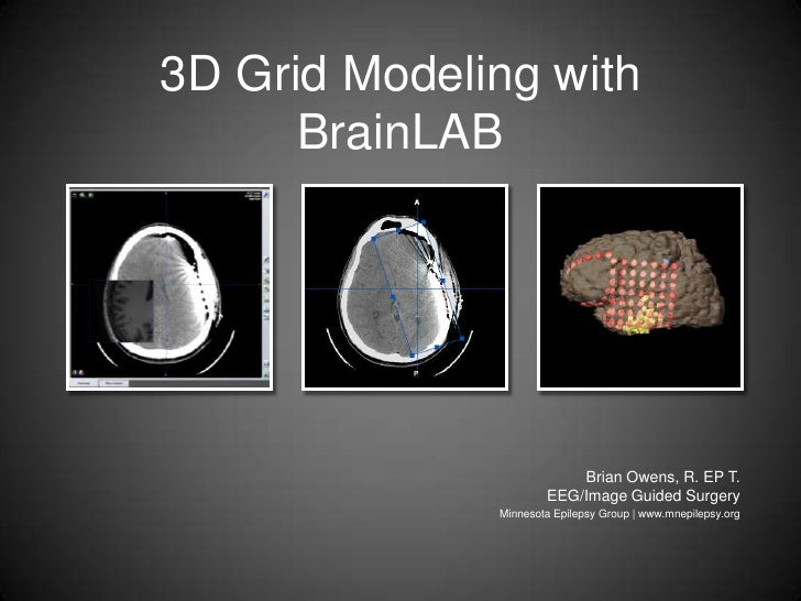 3D Grid Modeling with BrainLAB<br />Brian Owens, R. EP T.EEG/Image Guided Surgery<br />Minnesota Epilepsy Group | www.mnep...