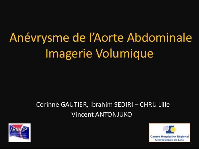Anévrysme de l'Aorte Abdominale Imagerie Volumique Corinne GAUTIER, Ibrahim SEDIRI – CHRU Lille Vincent ANTONJUKO