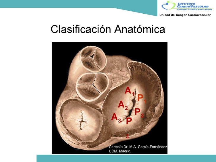 Leopoldo Pérez de Isla: Ecocardiograma transesofágico 3D