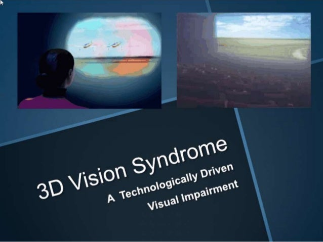 3D vision syndrome