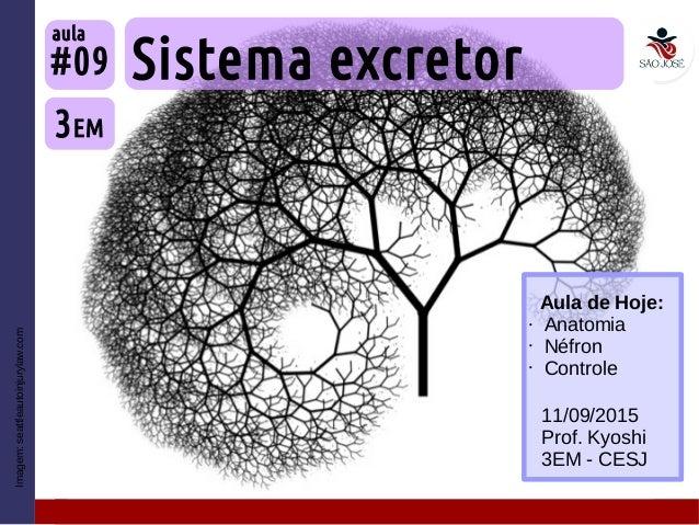 Imagem:seattleautoinjurylaw.com Sistema excretor 3EM #09 aula 11/09/2015 Prof. Kyoshi 3EM - CESJ Aula de Hoje: • Anatomia ...