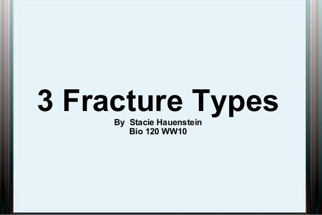 3 Fracture TypesBy Stacie Hauenstein Bio 120 WW10