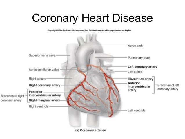 Chapter 8 transport in humans lesson 3 structure and function of th coronary heart disease 37 ccuart Images