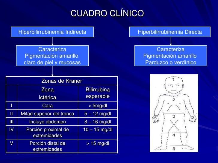 CUADRO CLÍNICO<br />Hiperbilirrubinemia Directa<br />Hiperbilirrubinemia Indirecta<br />Caracteriza<br />Pigmentación amar...