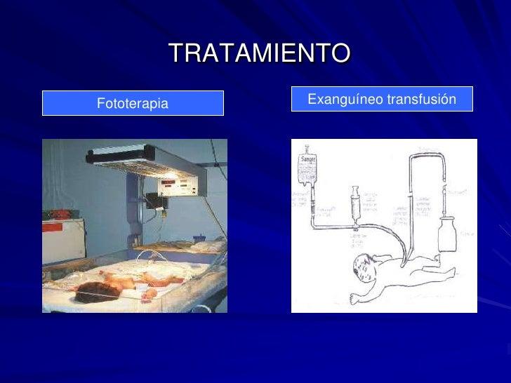TRATAMIENTO<br />Exanguíneo transfusión<br />Fototerapia<br />