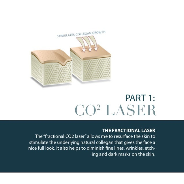 PART 2: SMARTLIPO SmartLipo is new laser option to treat the neck and mild-to-mod- erate looseness of the skin. I use this...