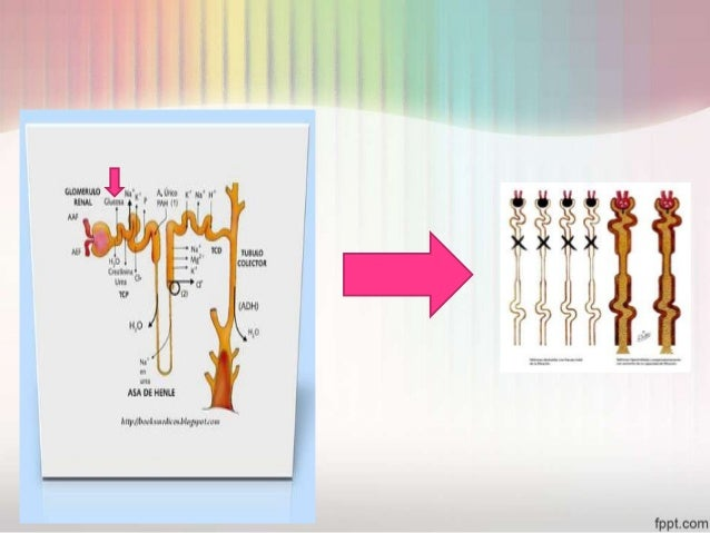 insuficiencia renal aguda Slide 11
