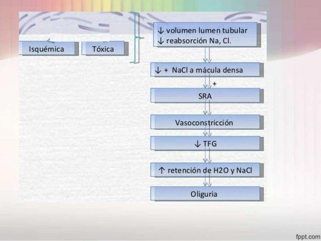 insuficiencia renal aguda Slide 13