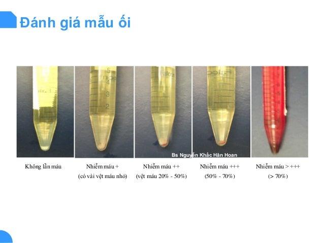 Đánh giá mẫu ối Không lẫn máu Nhiễm máu + (có vài vệt máu nhỏ) Nhiễm máu ++ (vệt máu 20% - 50%) Nhiễm máu +++ (50% - 70%) ...