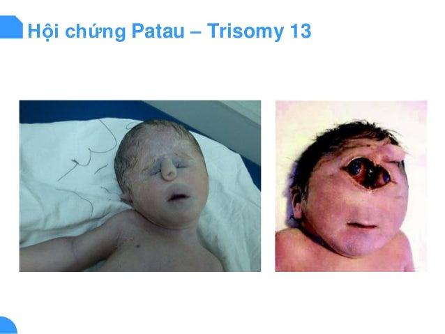 Hội chứng Patau – Trisomy 13