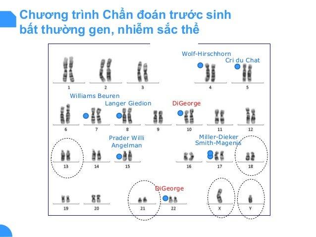 Chương trình Chẩn đoán trước sinh bất thường gen, nhiễm sắc thể Wolf-Hirschhorn Cri du Chat Smith-Magenis Williams Beuren ...