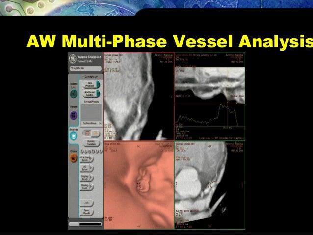 AW Multi-Phase Vessel Analysis