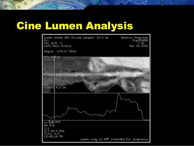 Cine Lumen Analysis