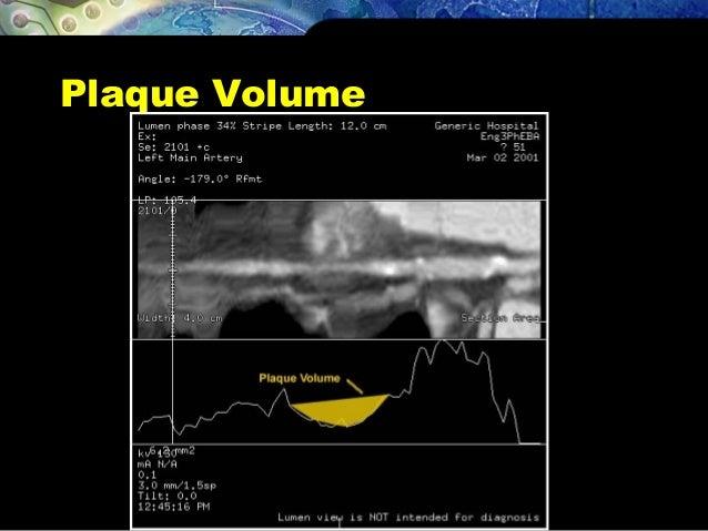 Plaque Volume