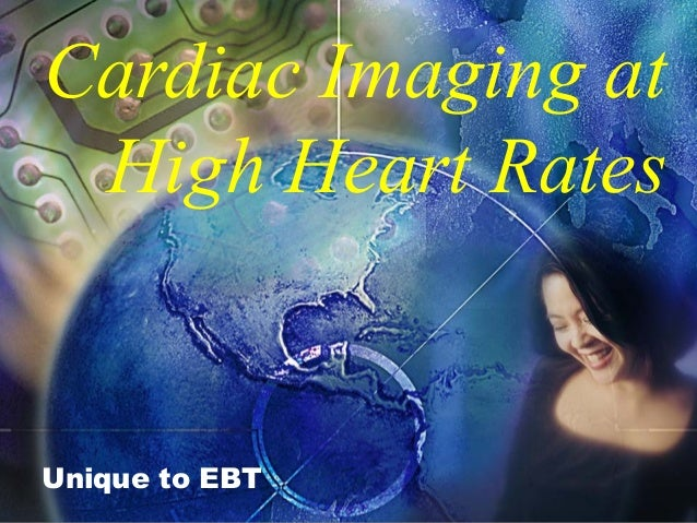 Cardiac Imaging at High Heart Rates Unique to EBT