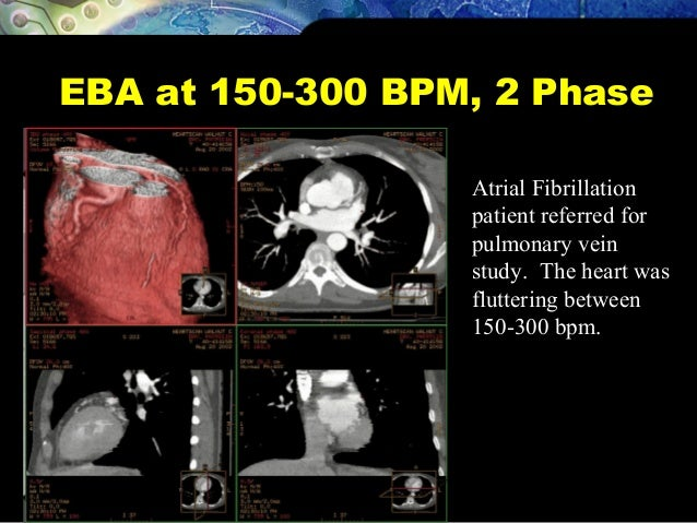 EBA at 150-300 BPM, 2 Phase Atrial Fibrillation patient referred for pulmonary vein study. The heart was fluttering betwee...