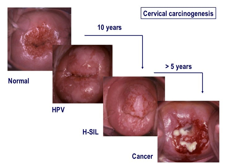 abnormal cervical cancer Abnormal cells are not cancer but they can lead to cancer here's what you need to know about diagnosing and treating abnormal cervical cells.