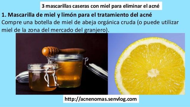 http   acnenomas.senvlog.com 3 mascarillas caseras con miel para eliminar  ... ba93b632712b