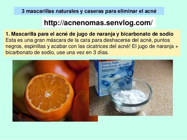 ¿Cómo eliminar el acné de forma natural  - Usa estas 3 mascarillas ca… ae195e45f8c9