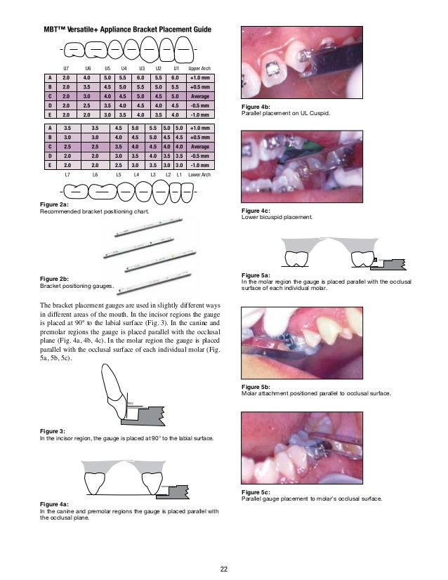 29af7f437c09 MBT TECHNIQUE - ORTHODONTIC EDUCATION FOR GENERAL PRACTITIONERS.