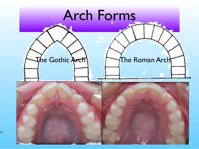 Arch Forms The Gothic Roman
