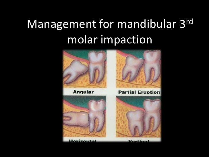 Management for mandibular 3rd molar impaction<br />