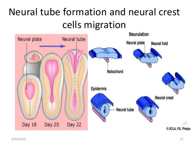 Human Body Cavities Diagram also 9560904 likewise What Is A Csf Shunt as well Dorsal Body Cavity Organs Anatomy Body Cavities Ventral Abdominopelvic Thoracic Dorsal Pelvic also 4044676. on spinal cavity organs
