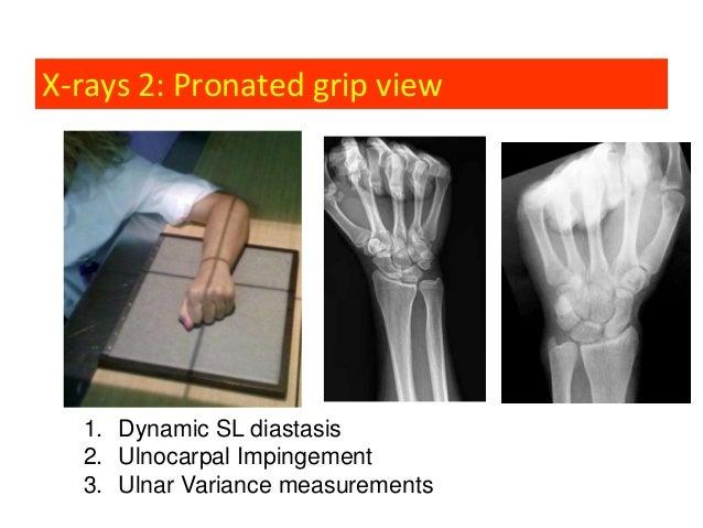 3 Common Clinical Scenarios Leading To Wrist Arthroscopy