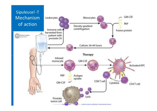 Sipuleucel -T Mechanism of action Cirrhosis.pptx by Arun Viswanthan is licensed under a Creative Commons Attribution 4.0 I...