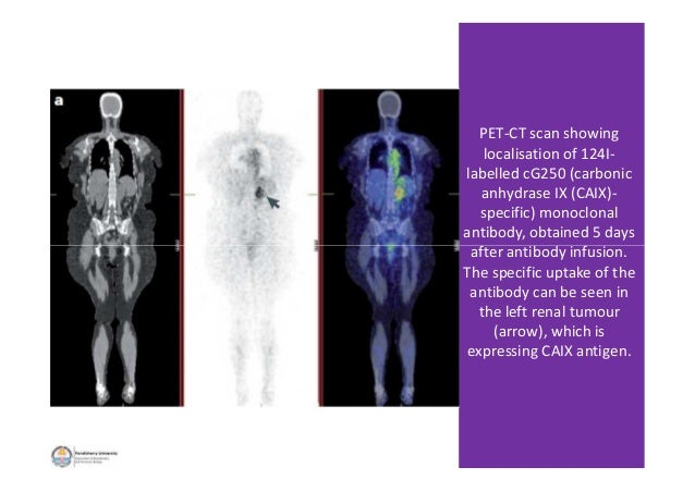 PET-CT scan showing localisation of 124I- labelled cG250 (carbonic anhydrase IX (CAIX)- specific) monoclonal antibody, obt...