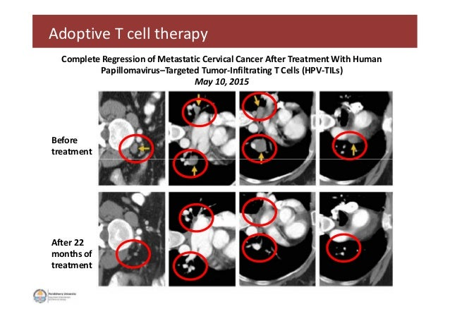 Adoptive T cell therapy Before treatment Complete Regression of Metastatic Cervical Cancer After Treatment With Human Papi...
