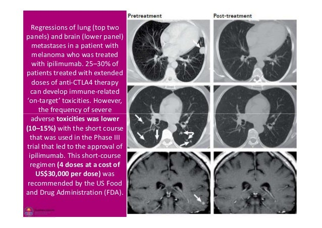 Regressions of lung (top two panels) and brain (lower panel) metastases in a patient with melanoma who was treated with ip...