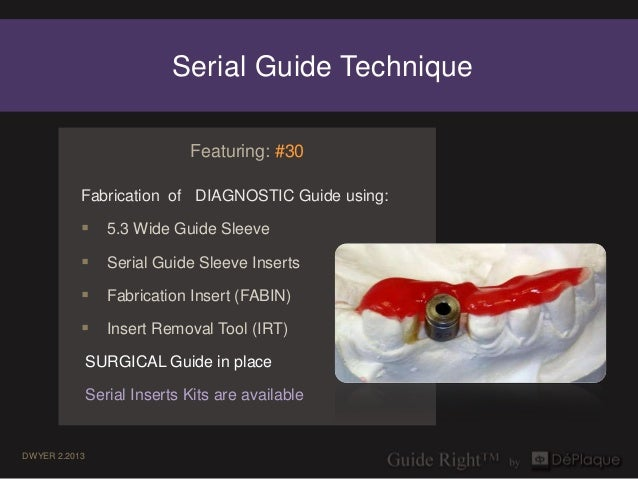 Serial Guide Technique                              Featuring: #30           Fabrication of DIAGNOSTIC Guide using:       ...