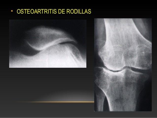 desgaste de rodilla rx