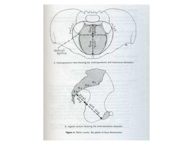 Phân loại khung chậuPhân loại khung chậu (Caldwell – Moloy)(Caldwell – Moloy) Gai hông không nhọn Gai hông nhọn Gai hông n...