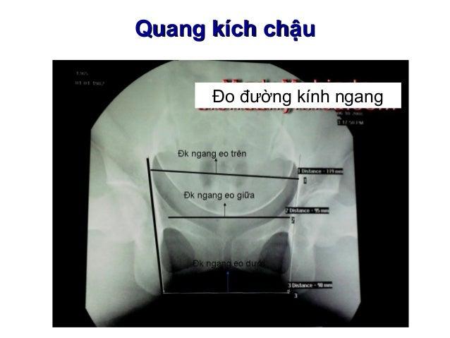 3 su phat trien cua thai va cac phan phu cua thai