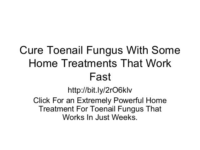 Cure Toenail Fungus With Some Home Treatments That Work Fast http://bit.ly/2rO6klv Click For an Extremely Powerful Home Tr...