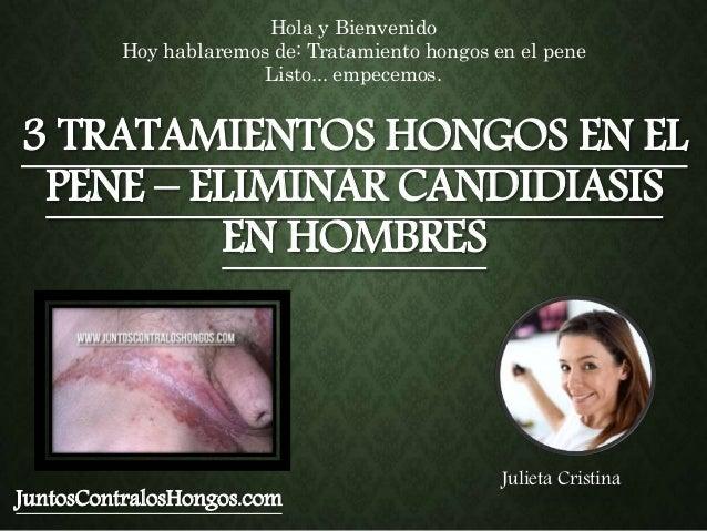 3 TRATAMIENTOS HONGOS EN EL PENE – ELIMINAR CANDIDIASIS EN HOMBRES JuntosContralosHongos.com Hola y Bienvenido Hoy hablare...