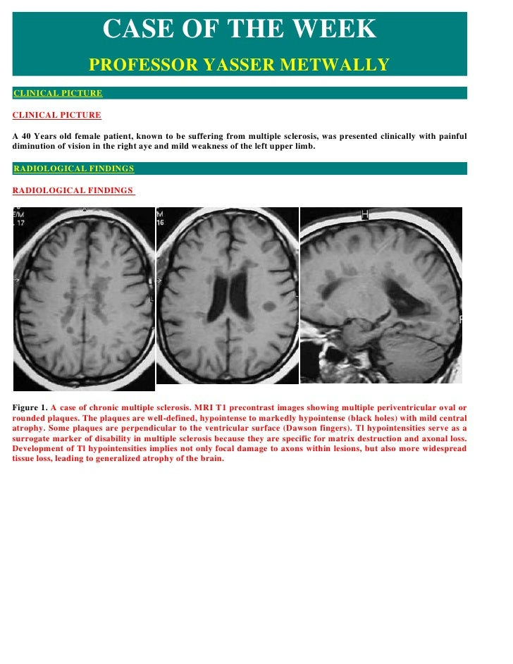 CASE OF THE WEEK                    PROFESSOR YASSER METWALLY CLINICAL PICTURE  CLINICAL PICTURE  A 40 Years old female pa...