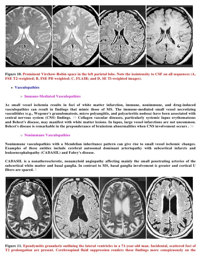 Case record... Multiple sclerosis
