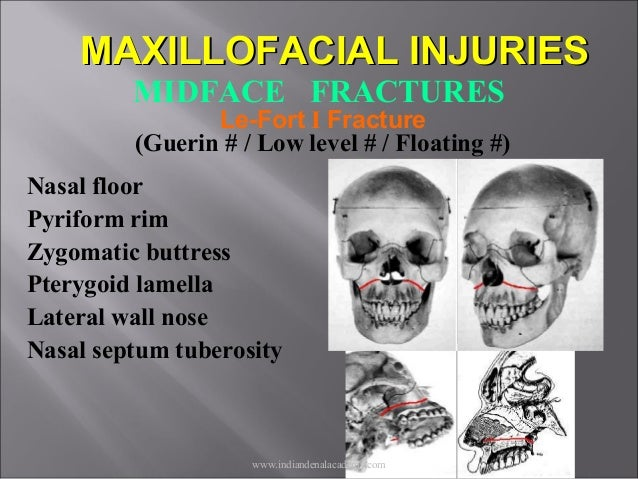Zygomatic Bone Maxillary Process Mid face fractures / /...